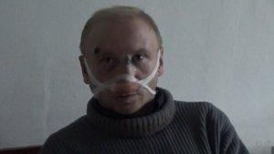 Избитый активист